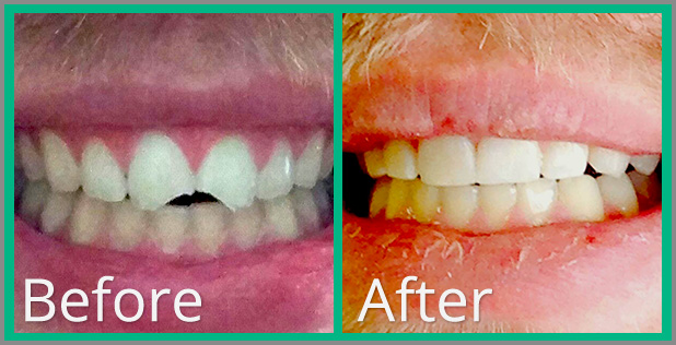 A patient's smile before and after a treatment at our office.